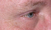 male blepharoplasty patient
