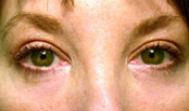 eyes of a female blepharoplasty patient