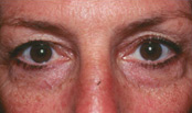 eyes of a female botox patient