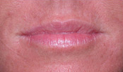 a patient's lips post treatment